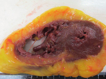 Fig. 1. Myocardium section. Yellow discoloration is apparent, centering on the right ventricle. No clear findings of infarction.