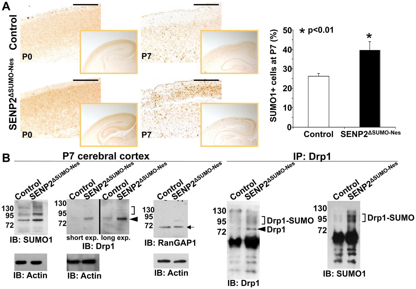 SENP2 deficiency enhances Drp1 sumoylation and stabilization in the developing cerebral cortex.