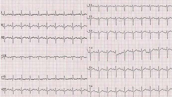 Elektrokardiogram pri príjme pacientky.