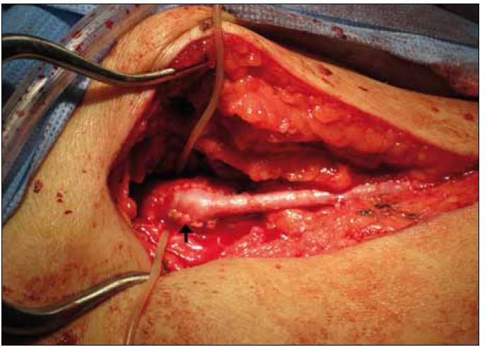 Obr. 2c. Následně pak chirurg na místě provedl rekonstrukci femoro-popliteálním bypassem. Šipka označuje místo proximální anastomózy.