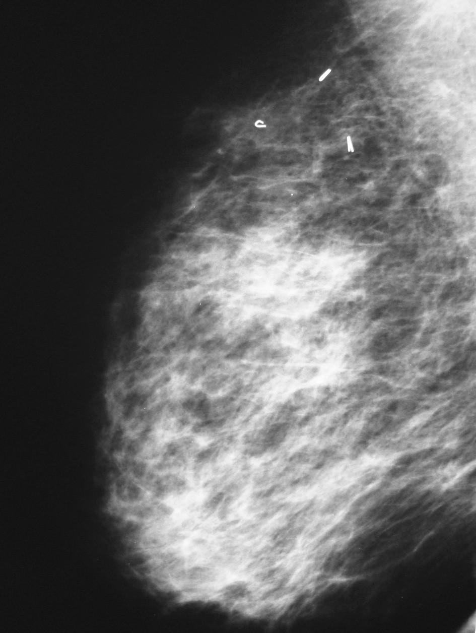 Mammografie po konzervativním výkonu Pic. 4. Mammography after conservative surgery