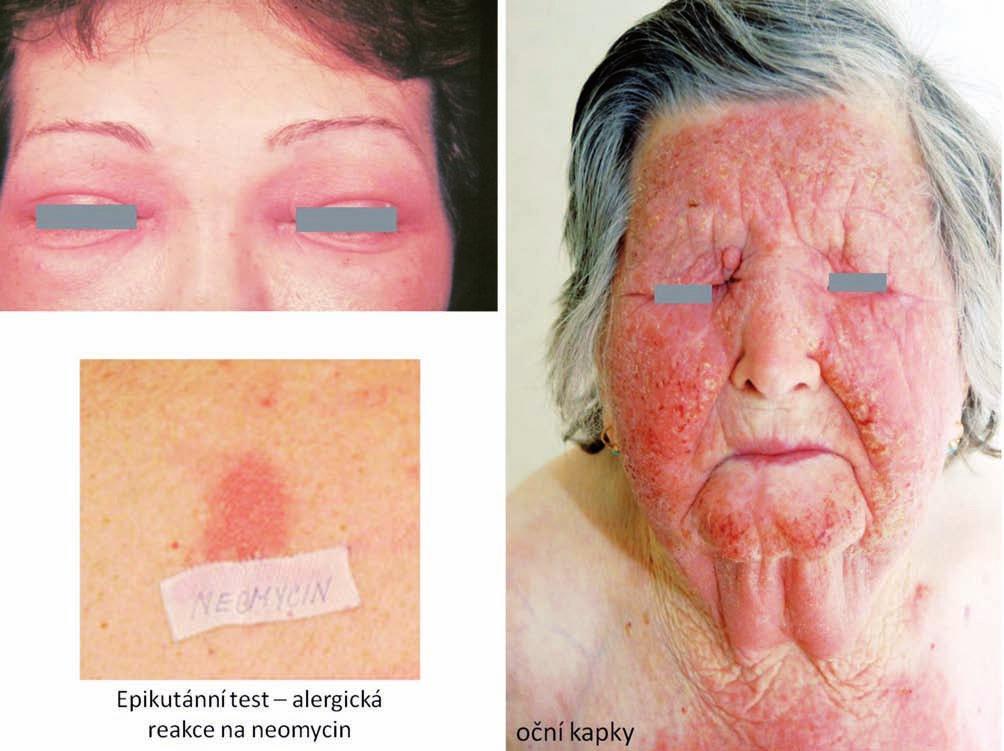 Eczema contactum – neomycin