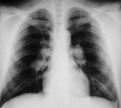 Skiagram hrudníku u sarkoidózy stadia I
