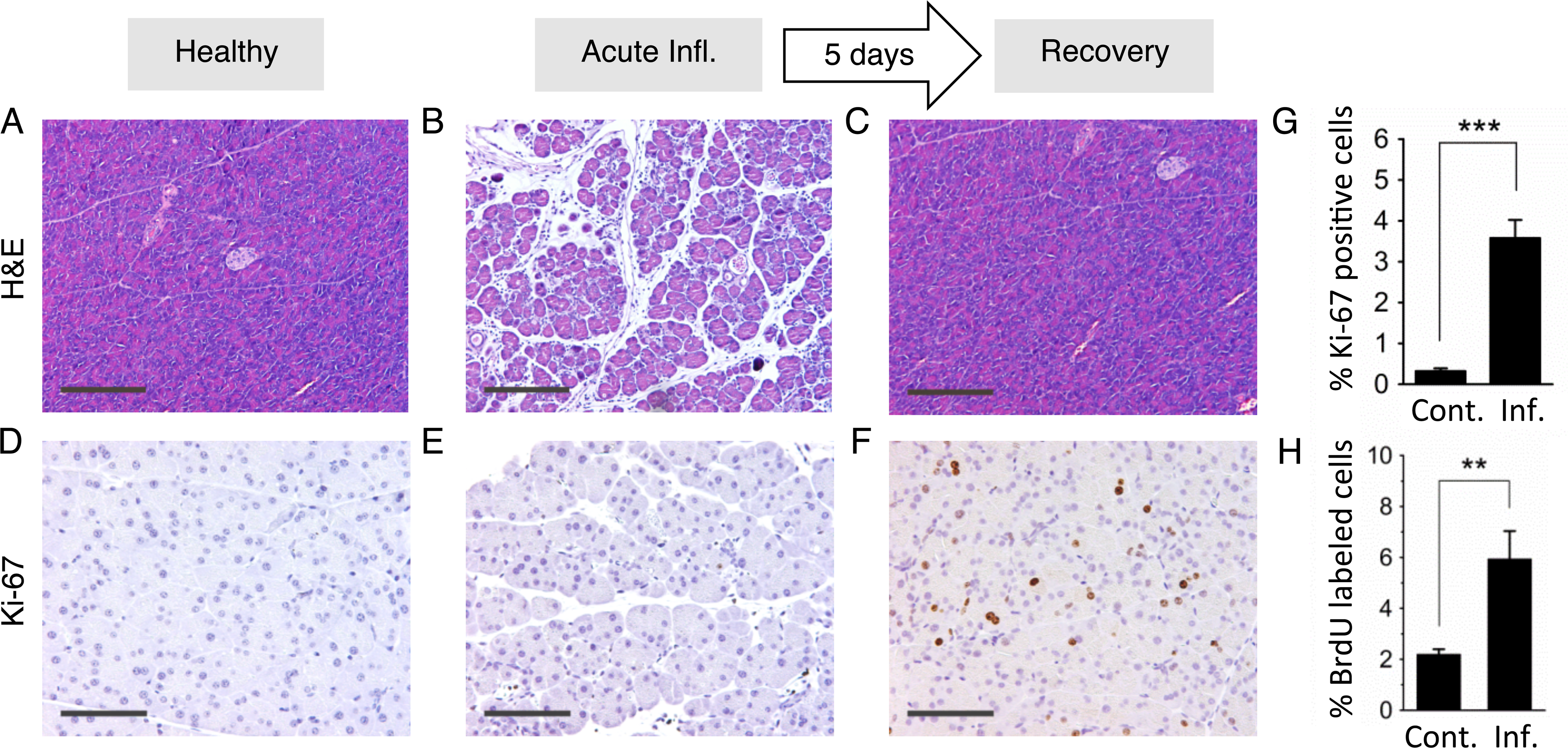 Inflammation and regenerative cell proliferation are separated in acute cerulein pancreatitis.