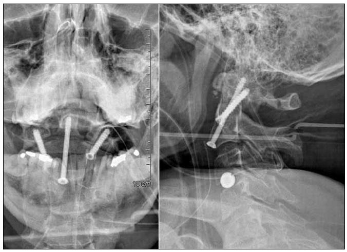 Radiologická kontrola anatomického postavení a pozice implantátů po přímé osteosyntéze dentu C2 a anterolaterální transartikulární stabilizaci C2–C1.