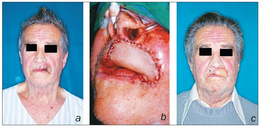 Patient presented with large basal cell carcinoma of the upper lip (a); after insetting of radial forearm flap (b); postoperative result (c)