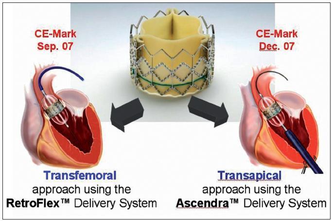 Chlopeň typu Sapien-Edwards a dvě přístupové cesty k implantaci: transfemorální a transapikální přes hrot levé komory