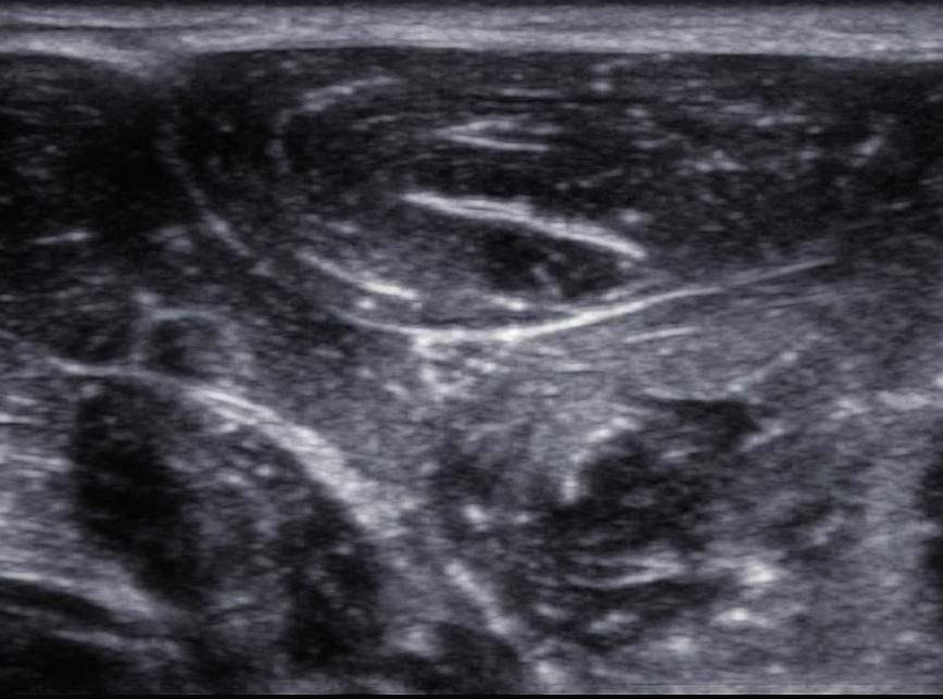 Trojúhelníkový příčný řez n. ulnaris několik centimetrů pod loktem