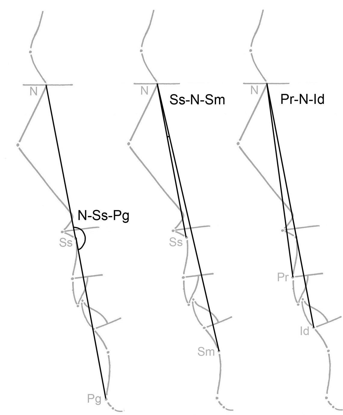 Fig. 2. The illustration of measurement of three important angle variables used in this study (N-Ss-Pg, Ss-N-Sm, Pr, N-Id)