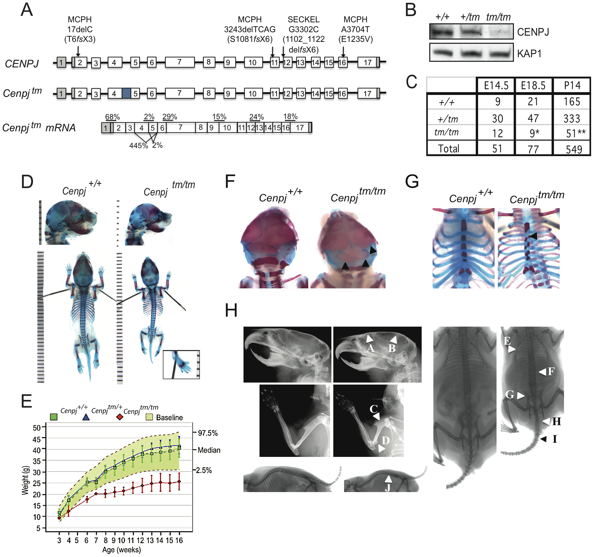 Generation of a mouse model of <i>CENPJ</i>-Seckel syndrome.