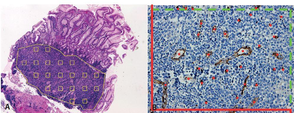 Stanovení mikrovaskulární denzity pomocí metody systematického náhodného výběru zorných polí v definované oblasti. <b>A</b>: vzorkování v mantle cell lymfomu (MCL) infiltrujícím sliznici tlustého střeva (hematoxylin-eosin, zvětšení 50x). <b>B</b>: označení počítaných profilů mikrocév v jednom zorném poli MCL v lymfatické uzlině s využitím počítacího rámečku pro tzv. nevychýlené počítání (42), který sestává ze zakázaných linií (červeně, protínající cévní profily nejsou započítány) a povolených linií (zeleně přerušovaně, dotýkající se cévní profily jsou započítány) (protilátka CD34, zvětšení 200x).