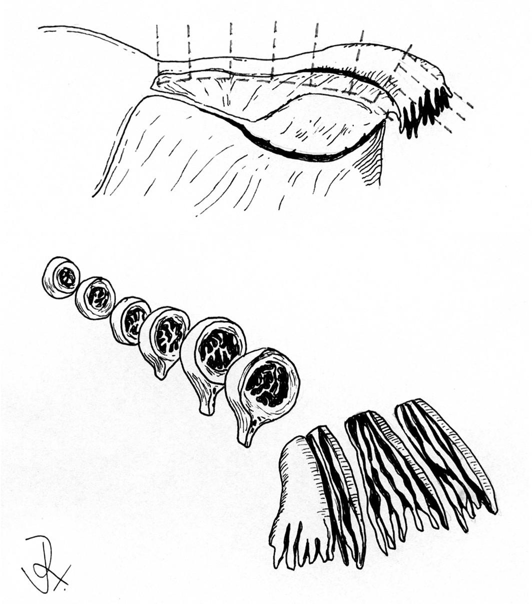 Zpracování děložní tuby podle protokolu SEE-FIM (sectioning and extensively examining the fimbria).