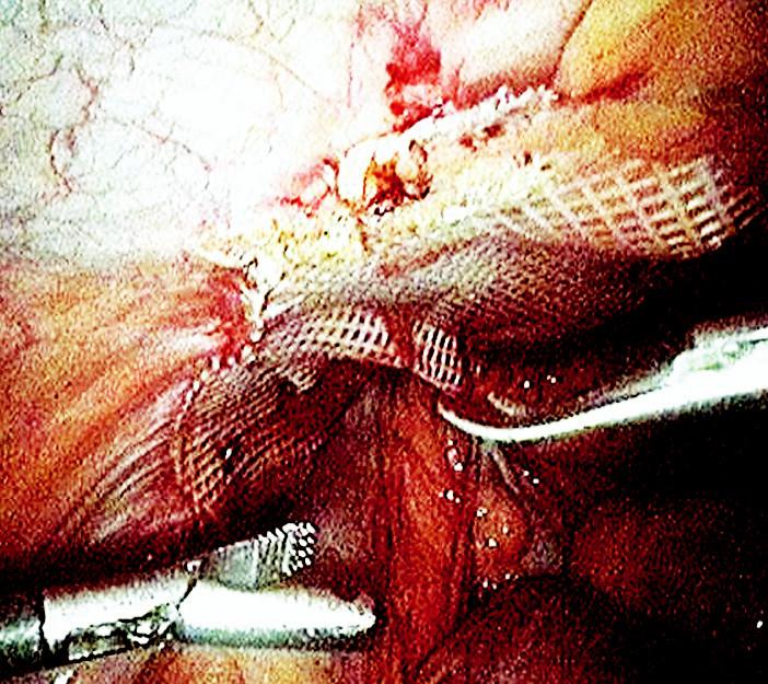 Laparoskopická operace tříselné kýly s použitím síťky Fig. 1. Laparoscopic inquinal hernia surgery using the mesh