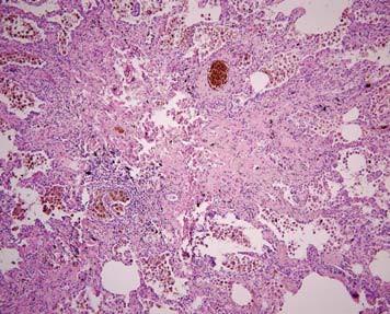 Mikromorfologický obraz ve standardním barvení HE (původní zvětšení 100x).