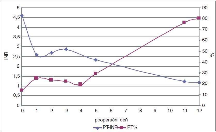 Vývoj INR a PT % počas hospitalizácie pacienta.