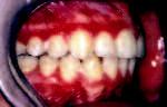 Obr. 6a. Intraorální pohled po sejmutí pevného ortodontického aparátu.