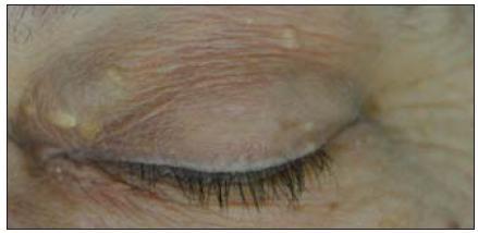 Patrná dilatace VOS ve vnitřním koutku levého oka.