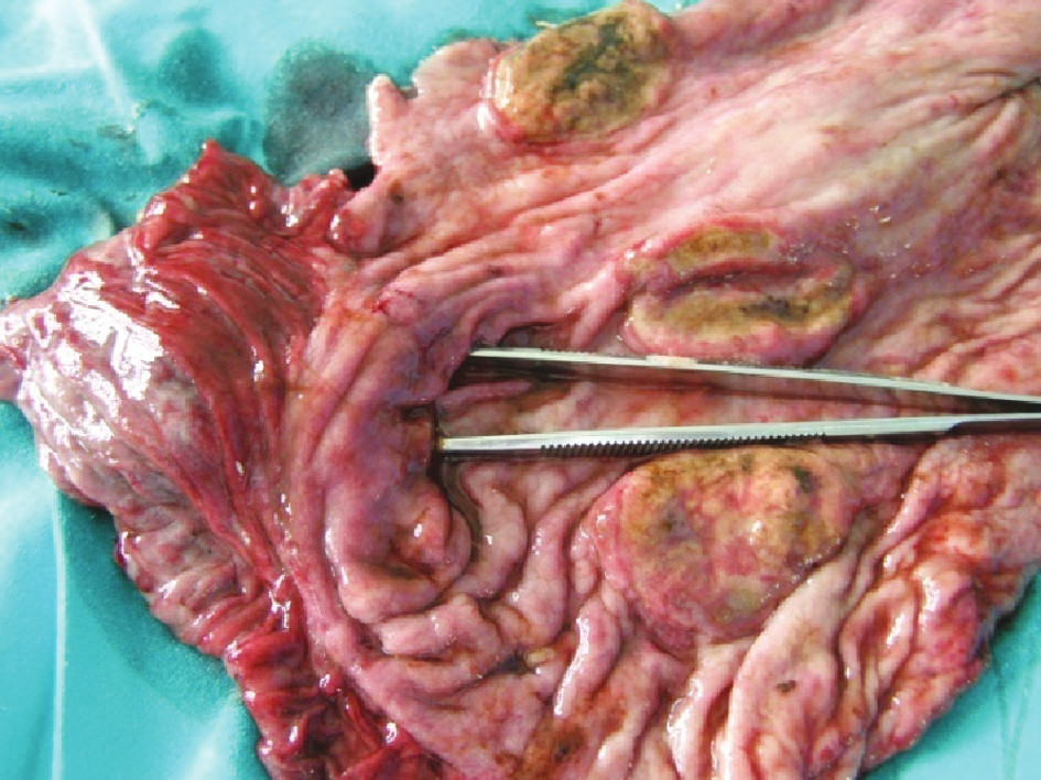 Detail exulcerácii Fig. 4. Exulceration – a detail view