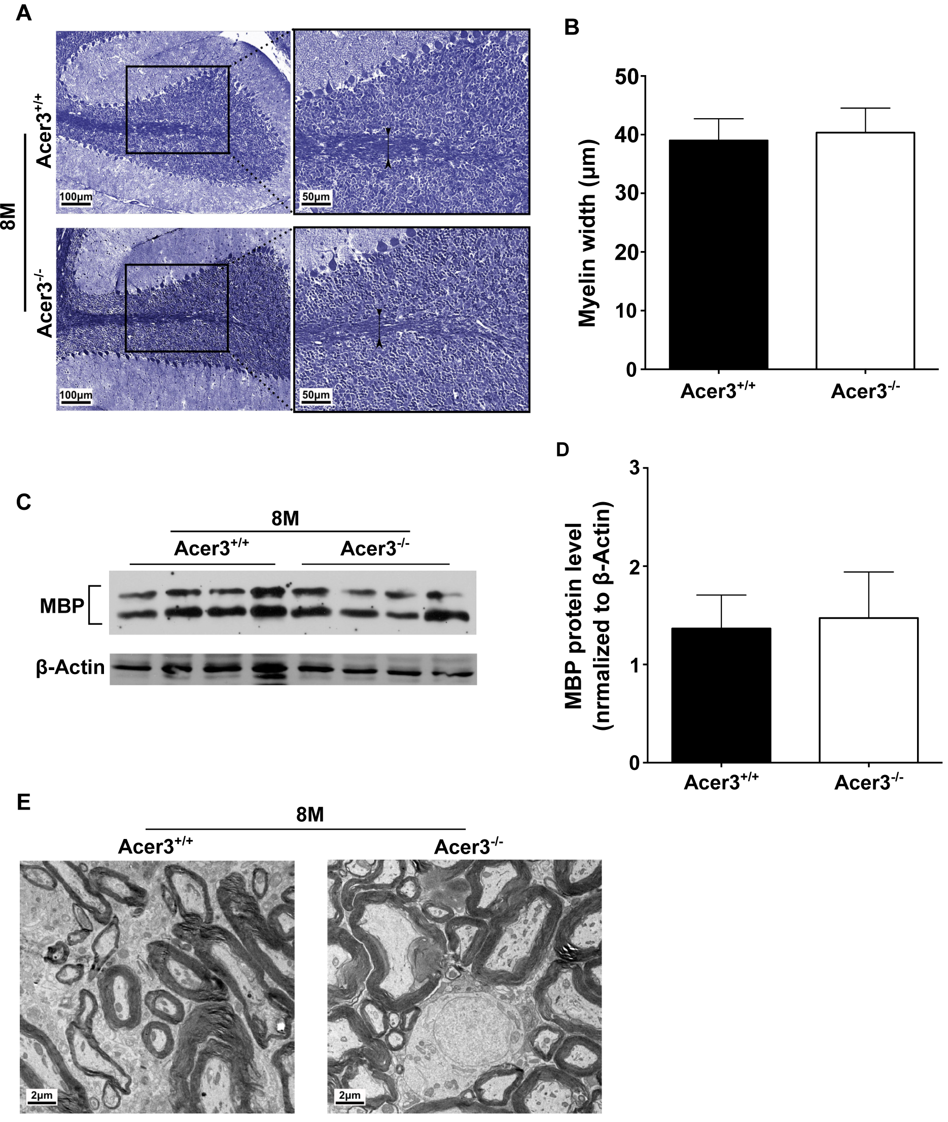 Acer3 knockout does not affect myelination.