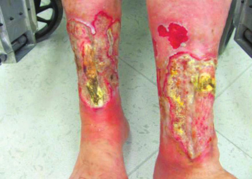 Defekty při infekci <i>Pseudomonas aeruginosa</i>
