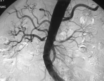 Angiografie AA s hemodynamicky významnými ostiálními stenózami obou renálních tepen.