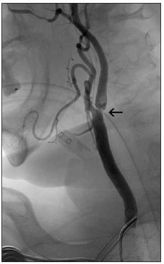 Obr. 5b. Po aspiraci sraženiny se objevila příčinná léze – významná stenóza v odstupu a. carotis int. (šipka).