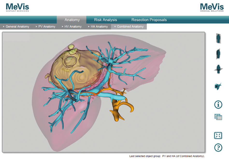 MeVis analýza tumoru, arteria hepatica a vena portae, pacient č. 2 Fig. 6: MeVis analysis of tumor, hepatic artery and portal vein, patient No. 2