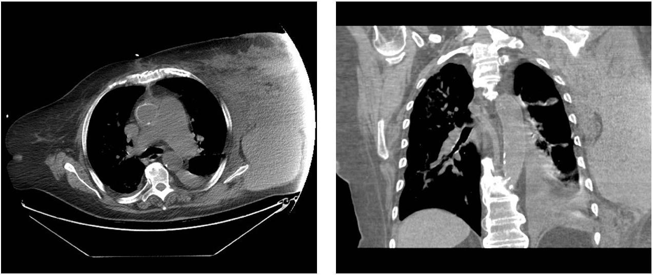 Obr. 1, 2: Rozsáhlý hematom hrudní stěny vlevo (CT nález) Fig. 1, 2: Extensive haematoma of the left chest wall (CT scan)