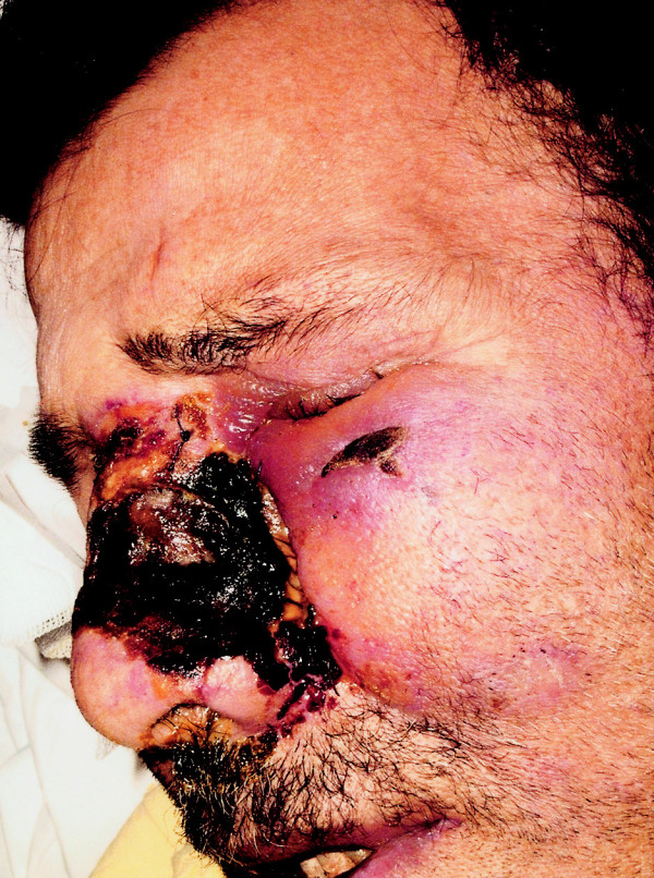 Nehojící se kožní defekt levého nosního křídla po první nekrektomii.