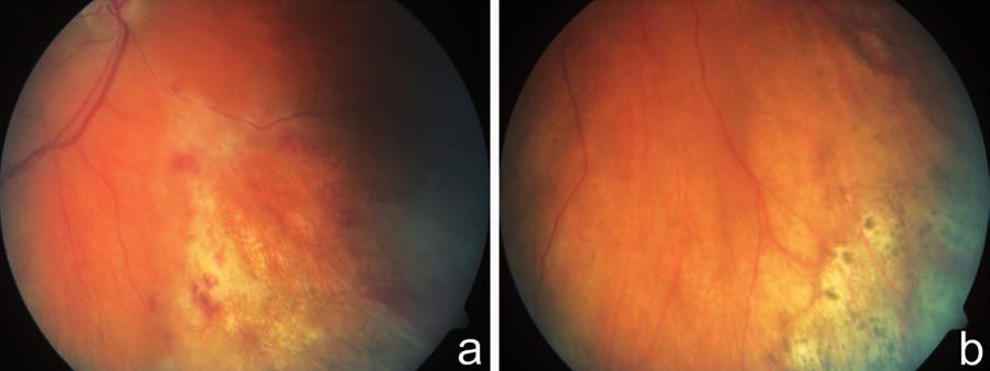 Indolentní forma CMV retinitidy. Fotografie fundu zachycuje periferní léze granulárního vzhledu s ojedinělými hemoragiemi u 59letého pacienta s lymfomem po transplantaci kostní dřeně, s fulminantní CMV retinitidou a poruchou vizu OL, bez poruchy vizu na OP a, b)