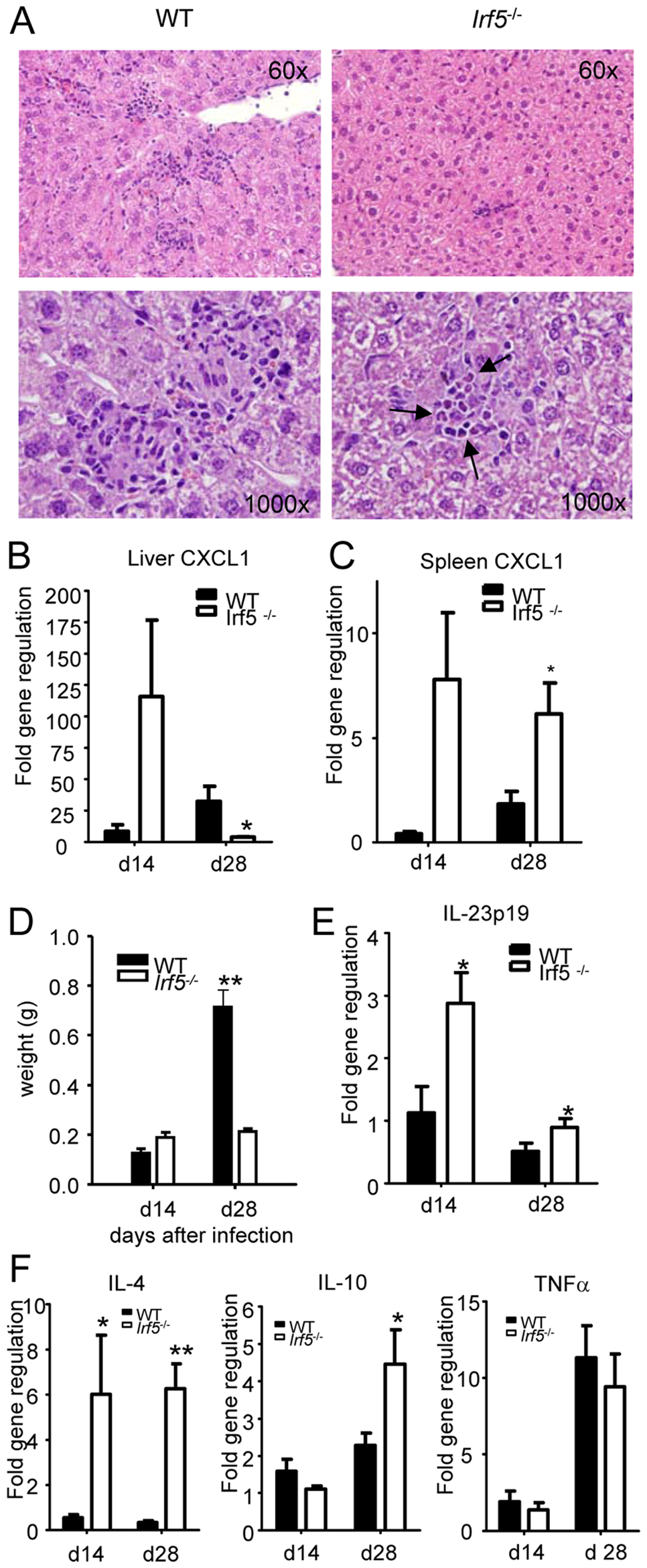 <i>Irf5</i><sup>-/-</sup> mice do not develop Th1-type granulomas.