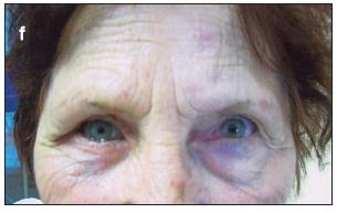 Obr. 1f. Pacient č. 1.Výsledný pooperačný stav 6 mesiacov po operácii