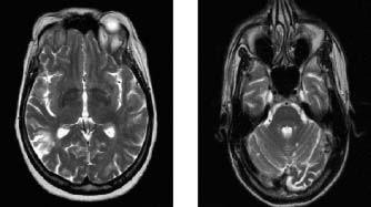 MR l,STv T2 váženém obraze: transverzální řezy mozkem 71leté nemocné s nediferencovaným onemocněním pojiva se sekundárním antifosfolipidovým syndromem: A) hyperintenzní ložiska v bílé hmotě periventrikulárně a subkortikálně, bez atrofie mozku. Klínovité ložisko okcipitálně vpravo. B) infratentoriálně přítomnost hyperintenzních lézí v mozečku.