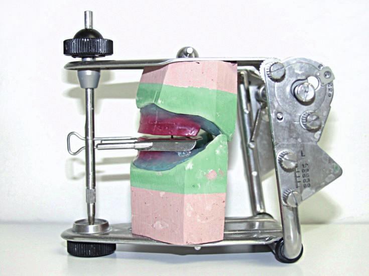Zastavené modely v Condylatoru v centrálním vztahu čelistí (foto autoři)