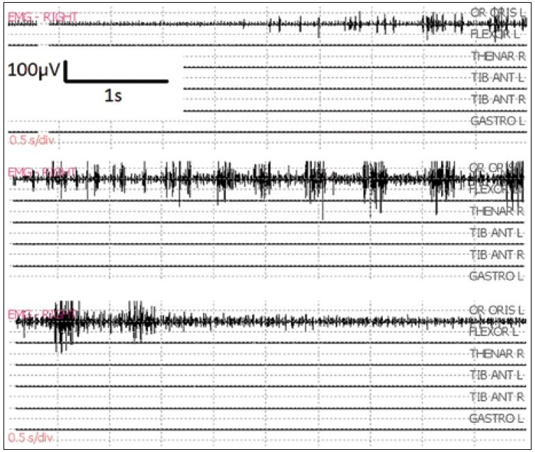 Fokálny epileptický záchvat po bipolárnej stimulácii 50 Hz v oblasti gyrus praecentralis. Je lokalizovaný v jednom monitorovanom svale (m. orbicularis oris), ustúpil do 10 sekúnd po aplikácii ľadového Ringer roztoku na mozgový kortex.