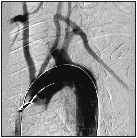 54-ročný muž s aneuryzmatickou dilatáciou anomálne odstupujúcej arteria subelavia dextra (arteria lusoria). Stav po cievno-chirurgických rekonštrukciách: prerušenie a reinzercia arteria subelavia dx. do arteria carotis communis dx. a subklavio-karotický bypas vľavo. Digitálna subtrakčná angiografia aortálneho oblúka asupraaortových vetiev. Fig. 3. A54-year old male with aneurysmal dilatation of an abnormal arteria subclavia dextra (arteria lusoria). Following vascular reconstructions: transsection and reinsertion of the right subclavian artery into the right common carotic artery and subclavian- carotic bypass on the left. Digital subtraction angiography of the aortic arch and supraaortic branches.