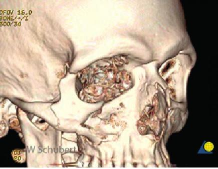 3D rekonstrukce zlomeniny lícně-čelistního komplexu
