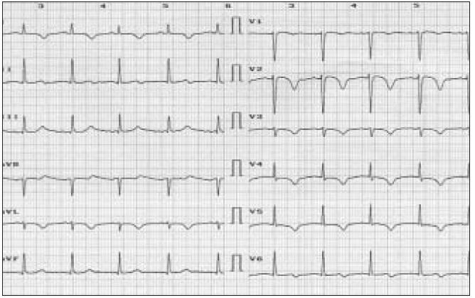 Obr. 1a. EKG nález 39 ročnej ženy, ktorá bola prijatá na kliniku s bolesťami na hrudníku typu stenokardií, ktoré sa objavili počas niekoľkodňovej cyklistiky počas febrilného ochorenia.