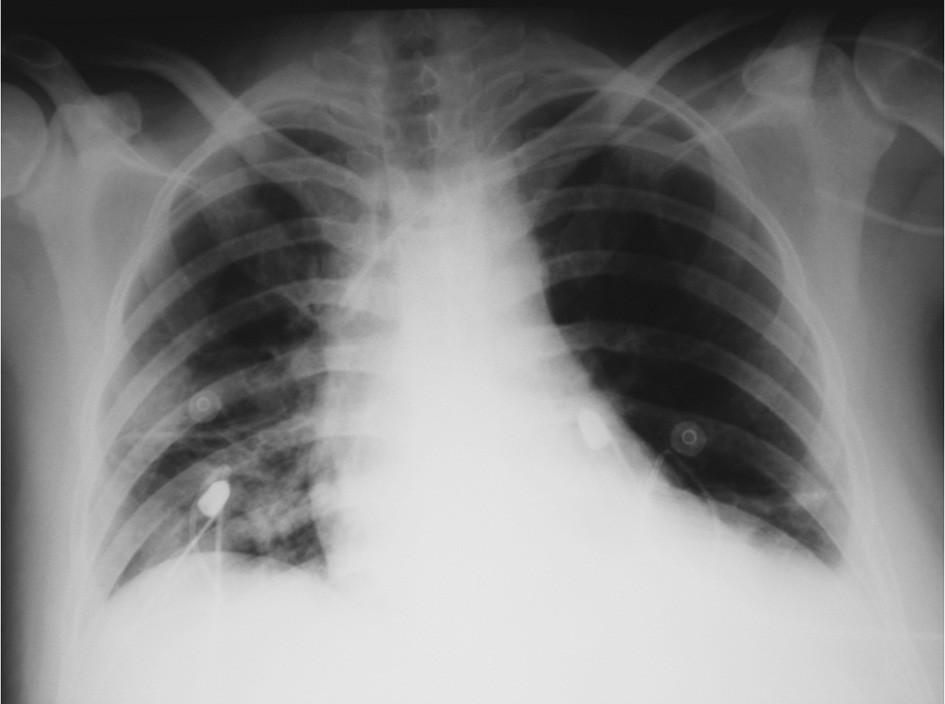 RTG plic – po drenáži obou hemitoraxů Fig. 4. Pulmonary x-ray – following drainage of the both hemithoraces