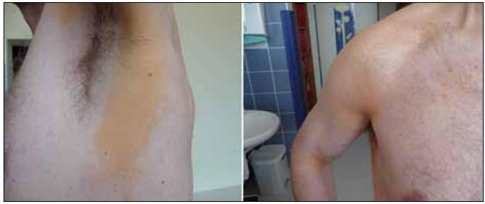 Difuzní plošná normolipemická xantomatóza, která je u tohoto pacienta provázena monoklonální gamapataií s nízkou koncentrací monoklonálního imunoglobulinu. Xantomatóza postihuje v tomto případě pouze plošně kůži.