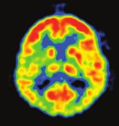 FDG PET pacienta s levostranným chronickým tinnitem. Oblast zvýšené metabolické aktivity v temporoparietální oblasti.