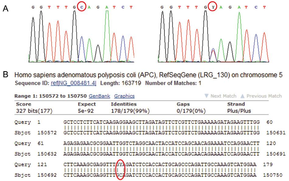 """Sekvenogram genu APC (vlevo referenční """"wild type"""" sekvence, vpravo analyzovaná sekvence). Jedná se o záměnu báze C za T (označení Y pro takovéto báze na jedné pozici), mutace je v heterozygotním stavu; je spojena s onemocněním familiární adenomatózní polypóza střev (FAP). B: Výstup z databáze BLAST – Porovnání analyzované sekvence genu APC (horní řádky """"Query"""") s referenční sekvencí (spodní řádky """"Sbjct""""). Označeno je místo bez homologie. V případě homozygotní či hemizygotní mutace by označená báze C byla v sekvenogramu zcela nahrazena bází T."""