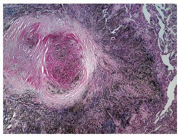 Obr. 6. Muž 87 let, pitevní nález rozsáhlého fibrózně nodulárního postižení plic převážně v horních lalocích u pacienta s karcinomem prostaty, trombo/embolickými komplikacemi (paraneoplastické etiologie?) a čerstvou malacií v mozku. Profesionální anamnézu se z dokumenace nepodařilo zjistit (nicméně bydliště v hornické lokalitě).  Typická morfologie cirkulárně (cibulovitě) uspořádané fibrózy v silikotickém uzlíku při těžké antrakosilikóze.