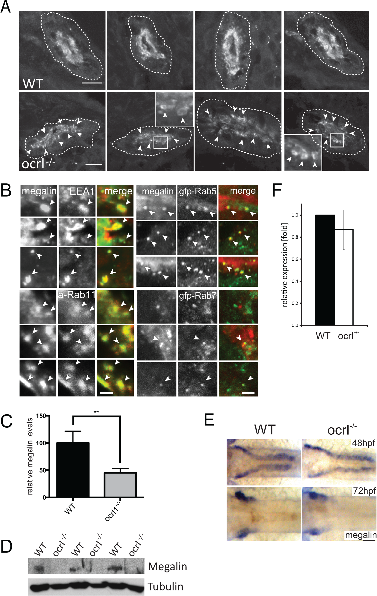 Megalin transcript and protein analysis in OCRL1-deficient zebrafish embryos.