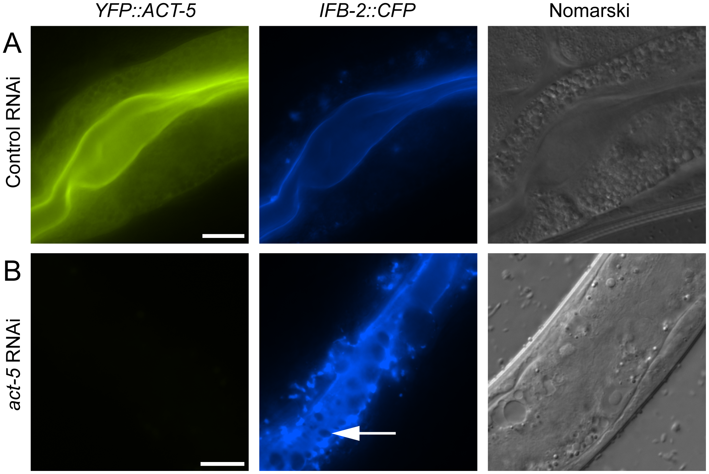 Reducing expression of actin causes terminal web gaps in the absence of infection.