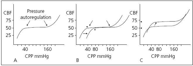 Křivka tlakové autoregulace. Normální autoregulační křivka.