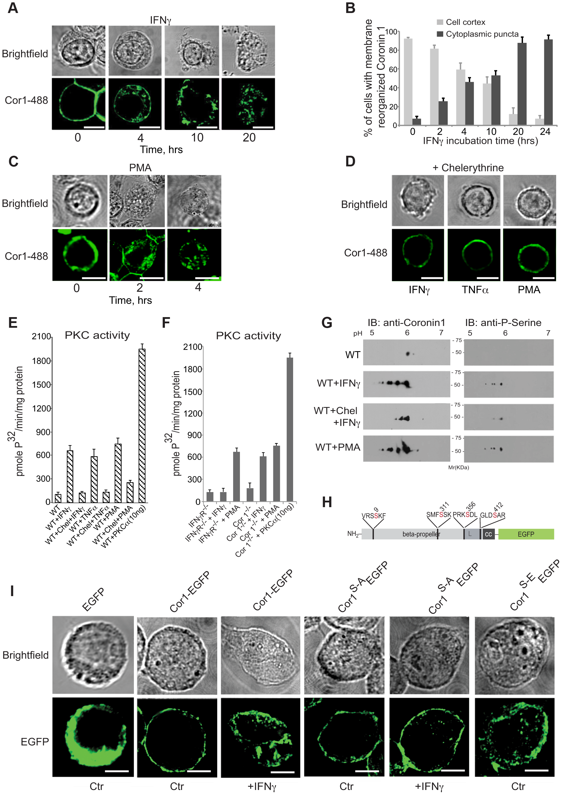 Coronin 1 relocalization and phosphorylation upon macrophage activation.