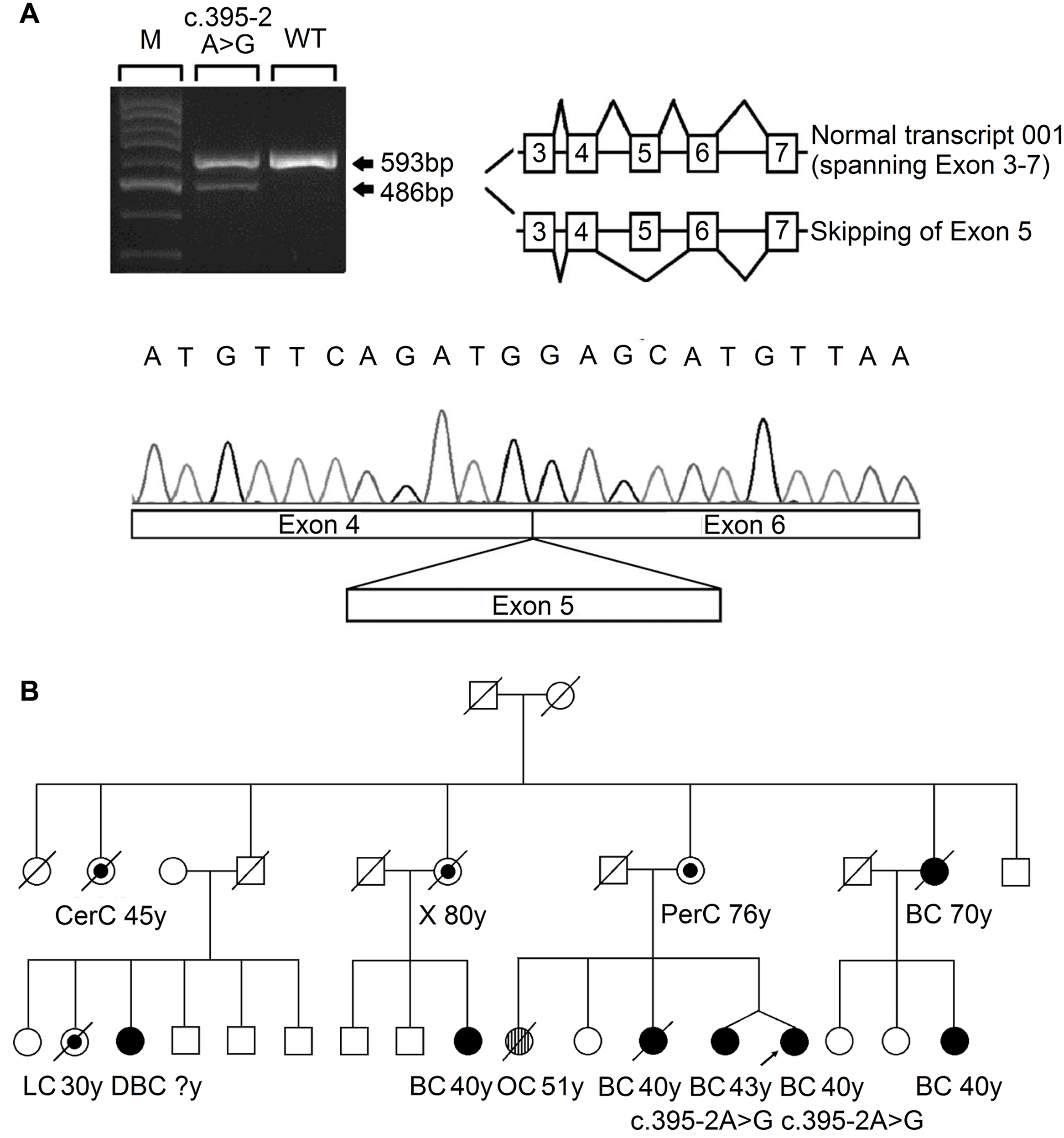 Analysis of the splicing mutation 395–2 A>G.
