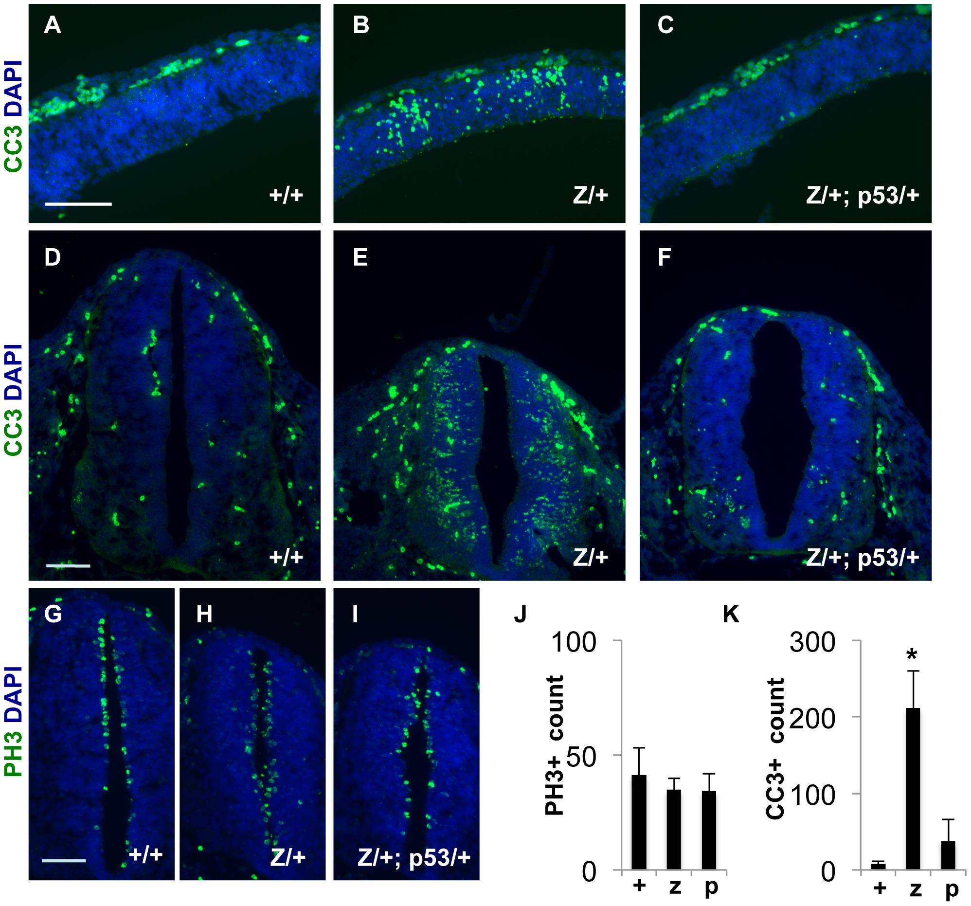 Increased apoptosis occurs in the developing CNS of <i>Rps7<sup>Zma</sup>/+</i> mutant embryos; however, this apoptosis is reduced in <i>Rps7<sup>Zma</sup>/+</i>; <i>Trp53<sup>KO</sup>/+</i> embryos.