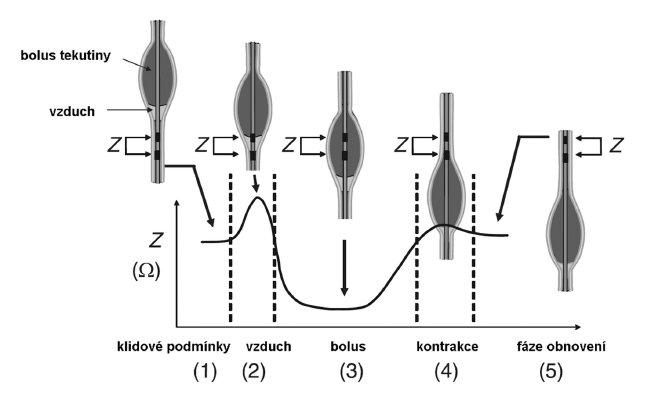 Změna impedance jícnu v průběhu přechodu bolusu jícnem. Při přechodu bolusu jícnem dochází k typické změně impedance mezi 2 sousedními senzory, která pozůstává z 5 stadií:<br>1. Základní hladina impedance v klidu.<br>2. Impedance roste při přechodu vzduchu (který předchází bolus) jícnem.<br>3. V průběhu pasáže bolusu místem senzorů impedance klesá.<br>4. Impedance roste z důvodu kontrakce svaloviny jícnu.<br>5. Impedance se vrací do původních klidových hodnot (upraveno podle Conchillo et al, 2008)